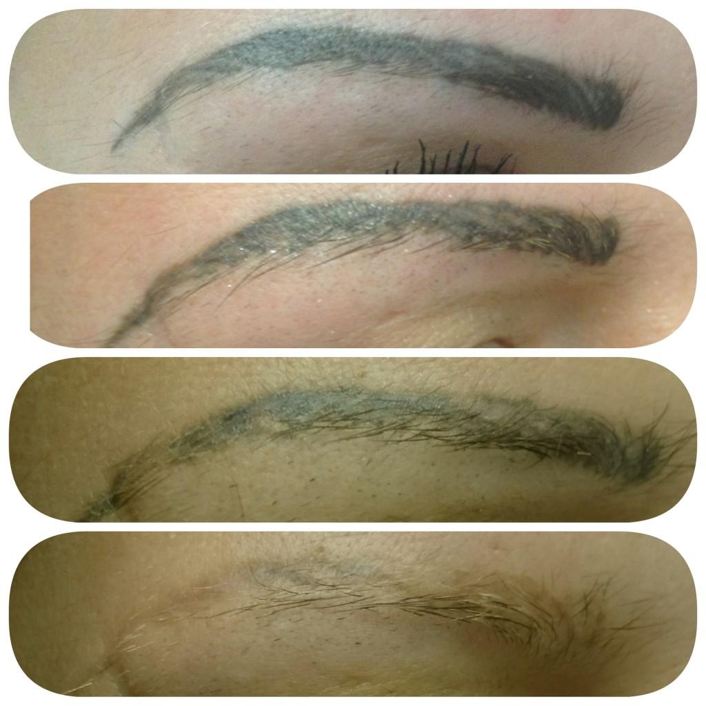 Лазерное удаление татуажа бровей: до и после