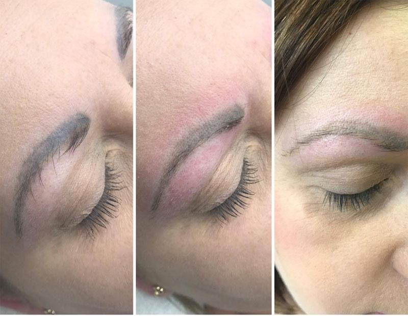 Удаление перманентного макияжа лазером: фото дои после