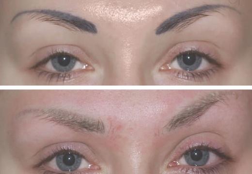 Удаление перманентного макияжа ремувером: результат до и после