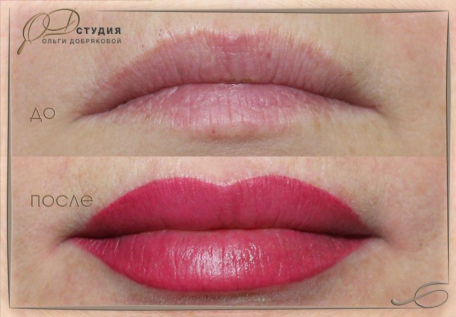 Визуальное увеличение объёма губ