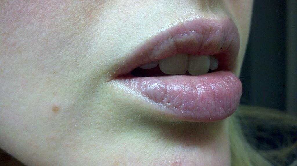Татуаж губ при наличии гранул Фордайса