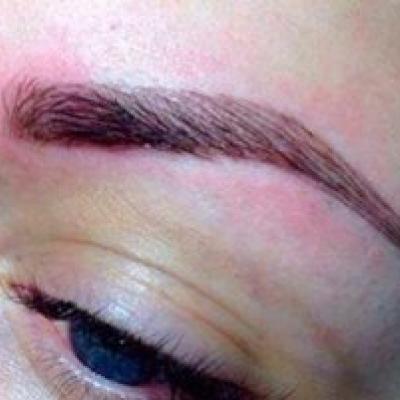 нормальная реакция кожи после татуажа бровей