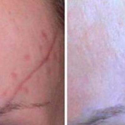 Татуаж средство борьбы с недостатками кожи